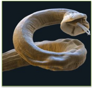 Lungworm electron micrograph