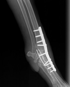 Carpal arthrodesis